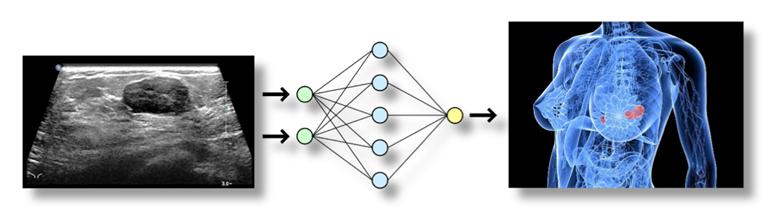 L'immagine mostra uno schema esemplificativo della rete neurale di SABREEN